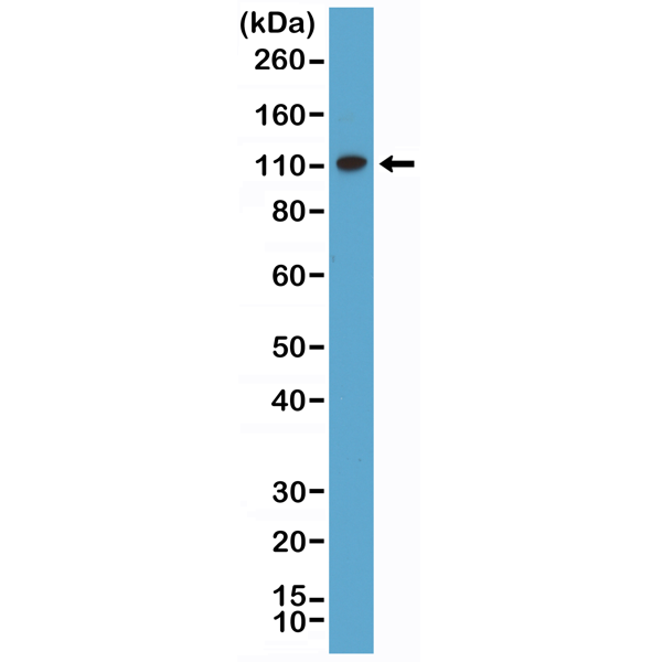 Figure 1. Western Blotting result<br>Western Blot of HeLa lysate using anti-MSH2 rabbit monoclonal antibody (Clone RM375) at a 1:500 dilution.