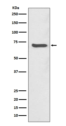 Western blot analysis of SHP2 expression in Jurkat cell lysate (M00150). <br>Electrophoresis was performed on a 5-20% SDS-PAGE gel at 70V (Stacking gel) / 90V (Resolving gel) for 2-3 hours. The sample well of each lane was loaded with 50ug of sample under reducing conditions. <br> After Electrophoresis, proteins were transferred to a Nitrocellulose membrane at 150mA for 50-90 minutes. Blocked the membrane with 5% Non-fat Milk/ TBS for 1.5 hour at RT. The membrane was incubated with rabbit anti-PTPN11 monoclonal antibody (Catalog # M00150)  overnight at 4°C, then washed with TBS-0.1%Tween 3 times with 5 minutes each and probed with a goat anti-rabbit IgG-HRP secondary antibody at a dilution of 1:10000 for 1.5 hour at RT. The signal is developed using an Enhanced Chemiluminescent detection (ECL) kit (Catalog # EK1002) with Tanon 5200 system. A specific band was detected for PTPN11