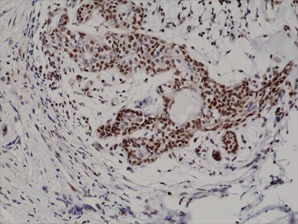 Figure 2. IHC result<br>Immunohistochemical staining of formalin fixed and paraffin embedded human breast cancer tissue section using anti-p27Kip1 rabbit monoclonal antibody (clone RM302) at a 1:200 dilution.