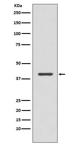 Western blot analysis of p38 MAPK expression in Jurkat cell lysate (M00176-1). <br>Electrophoresis was performed on a 5-20% SDS-PAGE gel at 70V (Stacking gel) / 90V (Resolving gel) for 2-3 hours. The sample well of each lane was loaded with 50ug of sample under reducing conditions. <br> After Electrophoresis, proteins were transferred to a Nitrocellulose membrane at 150mA for 50-90 minutes. Blocked the membrane with 5% Non-fat Milk/ TBS for 1.5 hour at RT. The membrane was incubated with rabbit anti-MAPK14 monoclonal antibody (Catalog # M00176-1)  overnight at 4°C, then washed with TBS-0.1%Tween 3 times with 5 minutes each and probed with a goat anti-rabbit IgG-HRP secondary antibody at a dilution of 1:10000 for 1.5 hour at RT. The signal is developed using an Enhanced Chemiluminescent detection (ECL) kit (Catalog # EK1002) with Tanon 5200 system. A specific band was detected for MAPK14
