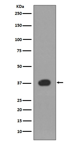 Western blot analysis of p38 expression in Jurkat cell lysate (M00176). <br>Electrophoresis was performed on a 5-20% SDS-PAGE gel at 70V (Stacking gel) / 90V (Resolving gel) for 2-3 hours. The sample well of each lane was loaded with 50ug of sample under reducing conditions. <br> After Electrophoresis, proteins were transferred to a Nitrocellulose membrane at 150mA for 50-90 minutes. Blocked the membrane with 5% Non-fat Milk/ TBS for 1.5 hour at RT. The membrane was incubated with rabbit anti-MAPK14 monoclonal antibody (Catalog # M00176)  overnight at 4°C, then washed with TBS-0.1%Tween 3 times with 5 minutes each and probed with a goat anti-rabbit IgG-HRP secondary antibody at a dilution of 1:10000 for 1.5 hour at RT. The signal is developed using an Enhanced Chemiluminescent detection (ECL) kit (Catalog # EK1002) with Tanon 5200 system. A specific band was detected for MAPK14