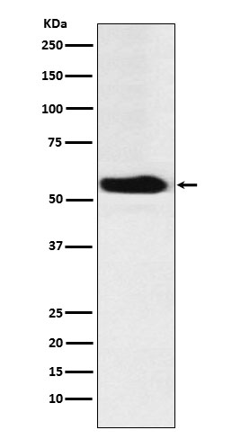 Figure 1. Western blot analysis of FTO using anti-FTO antibody (M00219).<br>Electrophoresis was performed on a 5-20% SDS-PAGE gel at 70V (Stacking gel) / 90V (Resolving gel) for 2-3 hours. The sample well of each lane was loaded with 50ug of sample under reducing conditions. <br>After Electrophoresis, proteins were transferred to a Nitrocellulose membrane at 150mA for 50-90 minutes. Blocked the membrane with 5% Non-fat Milk/ TBS for 1.5 hour at RT. The membrane was incubated with rabbit anti-FTO antigen affinity purified polyclonal antibody (Catalog # M00219) at 0.5 ug/mL overnight at 4°C, then washed with TBS-0.1%Tween 3 times with 5 minutes each and probed with a goat anti-Rabbit IgG IgG-HRP secondary antibody at a dilution of 1:10000 for 1.5 hour at RT. The signal is developed using an Enhanced Chemiluminescent detection (ECL) kit (Catalog # SA1022) with Tanon 5200 system. A specific band was detected for FTO.