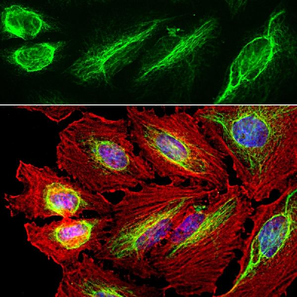 Immunofluorescent analysis of HeLa cell culture stained with chicken pAb to vimentin, M00235-5, dilution 1:10,000 in green, and costained with Boster mouse mAb to actin, dilution 1:500 in red. The blue is DAPI staining of nuclear DNA. The vimentin antibody stains the intermediate filament network while the actin antibody labels the submembranous cytoskeleton, stress fibers, and bundles of actin associated with cell adhesion sites.