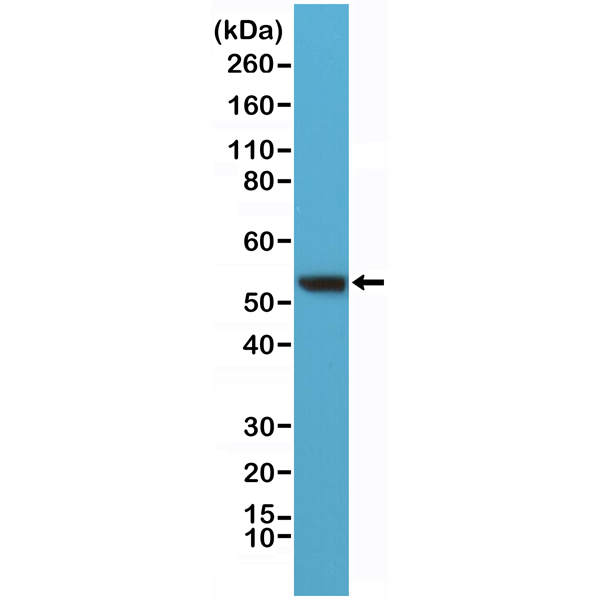 Figure 1. Western Blotting result<br>Western Blot of HeLa lysates using anti-Vimentin rabbit monoclonal antibody (clone RM289) at a 1:400 dilution.