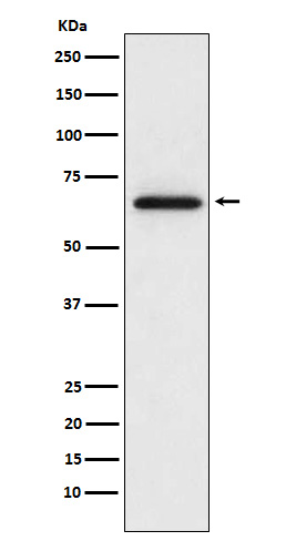 Figure 1. Western blot analysis of MMP2 using anti-MMP2 antibody in  L6 cell lysate. (M00286-3).<br>Electrophoresis was performed on a 5-20% SDS-PAGE gel at 70V (Stacking gel) / 90V (Resolving gel) for 2-3 hours. The sample well of each lane was loaded with 50ug of sample under reducing conditions. <br>After Electrophoresis, proteins were transferred to a Nitrocellulose membrane at 150mA for 50-90 minutes. Blocked the membrane with 5% Non-fat Milk/ TBS for 1.5 hour at RT. The membrane was incubated with rabbit anti-MMP2 antigen affinity purified polyclonal antibody (Catalog # M00286-3) at 0.5 ug/mL overnight at 4°C, then washed with TBS-0.1%Tween 3 times with 5 minutes each and probed with a goat anti-Rabbit IgG IgG-HRP secondary antibody at a dilution of 1:10000 for 1.5 hour at RT. The signal is developed using an Enhanced Chemiluminescent detection (ECL) kit (Catalog # SA1022) with Tanon 5200 system. A specific band was detected for MMP2.