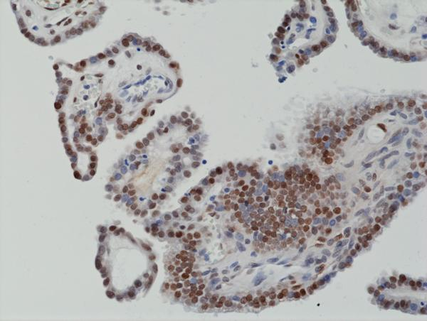Figure 2. IHC result<br>Immunohistochemical staining of formalin fixed and paraffin embedded human thyroid cancer tissue section using anti-c-Fos rabbit monoclonal antibody (Clone RM374) at a 1:1250 dilution.