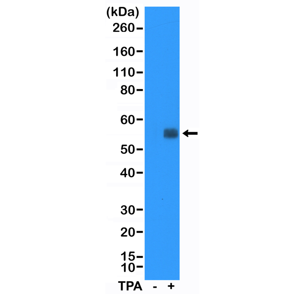 Figure 1. Western Blotting result<br>Western Blot of HeLa cell lysates: non-treated (-) or treated (+) with TPA, using anti-TTF1 rabbit monoclonal antibody (Clone RM374) at a 1:5000 dilution.