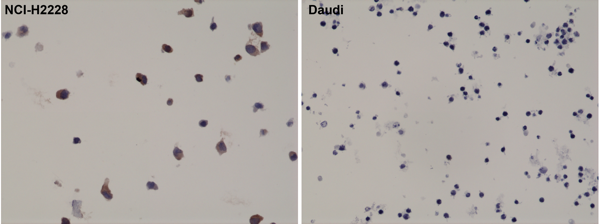 Figure 2. IHC result<br>Immunohistochemical staining of formalin fixed and paraffin embedded NCI-H2228 cells (expressing EML4-ALK variant 3) and Daudi cells (ALK negative), stained with anti-ALK rabbit monoclonal antibody clone RM361.