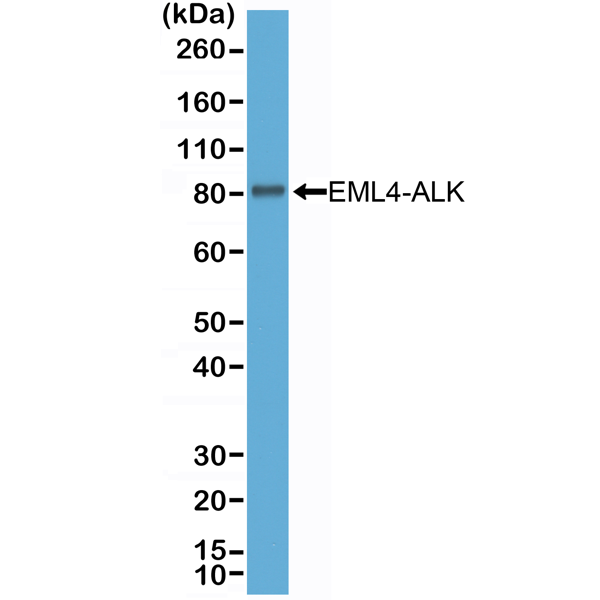 Figure 1. Western Blotting result<br>Western Blot of NSCLC cell line H2228 (Cell Lysate) expressing EML4-ALK variant 3, using anti-ALK rabbit monoclonal antibody (Clone RM361) at a 1:2000 dilution.