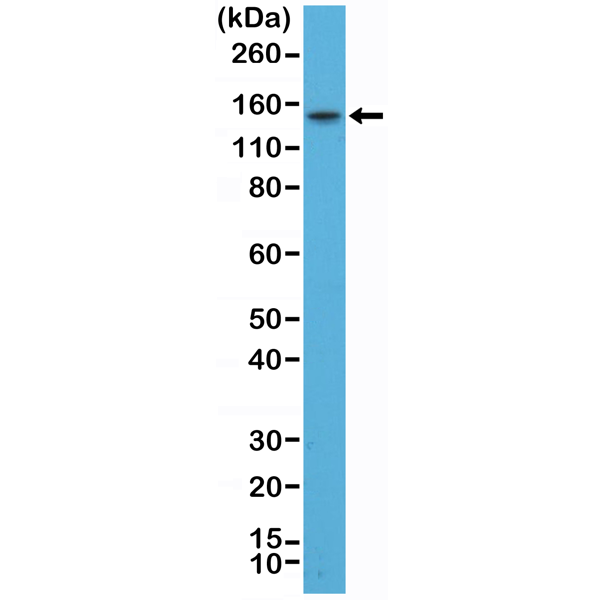 Figure 1. Western Blotting result<br>Western Blot of TT cell lysate using anti-TPO rabbit monoclonal antibody (Clone RM368) at a 1:200 dilution.