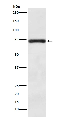 Western blot analysis of BACE1 expression in SH-SY5Y cell lysate (M00322). <br>Electrophoresis was performed on a 5-20% SDS-PAGE gel at 70V (Stacking gel) / 90V (Resolving gel) for 2-3 hours. The sample well of each lane was loaded with 50ug of sample under reducing conditions. <br> After Electrophoresis, proteins were transferred to a Nitrocellulose membrane at 150mA for 50-90 minutes. Blocked the membrane with 5% Non-fat Milk/ TBS for 1.5 hour at RT. The membrane was incubated with rabbit anti-BACE1 monoclonal antibody (Catalog # M00322)  overnight at 4°C, then washed with TBS-0.1%Tween 3 times with 5 minutes each and probed with a goat anti-rabbit IgG-HRP secondary antibody at a dilution of 1:10000 for 1.5 hour at RT. The signal is developed using an Enhanced Chemiluminescent detection (ECL) kit (Catalog # EK1002) with Tanon 5200 system. A specific band was detected for BACE1
