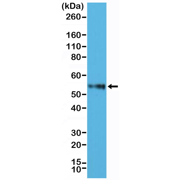 Figure 1. Western Blotting result<br>Western Blot of Jurkat cell lysate using anti-CD4 rabbit monoclonal antibody (Clone RM345) at a 1:2500 dilution.