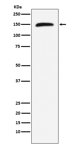 Figure 1. Western blot analysis of RAD50 using anti-RAD50 antibody (M00347).<br>Electrophoresis was performed on a 5-20% SDS-PAGE gel at 70V (Stacking gel) / 90V (Resolving gel) for 2-3 hours. The sample well of each lane was loaded with 50ug of sample under reducing conditions. <br>After Electrophoresis, proteins were transferred to a Nitrocellulose membrane at 150mA for 50-90 minutes. Blocked the membrane with 5% Non-fat Milk/ TBS for 1.5 hour at RT. The membrane was incubated with rabbit anti-RAD50 antigen affinity purified polyclonal antibody (Catalog # M00347) at 0.5 ug/mL overnight at 4°C, then washed with TBS-0.1%Tween 3 times with 5 minutes each and probed with a goat anti-Rabbit IgG IgG-HRP secondary antibody at a dilution of 1:10000 for 1.5 hour at RT. The signal is developed using an Enhanced Chemiluminescent detection (ECL) kit (Catalog # SA1022) with Tanon 5200 system. A specific band was detected for RAD50.