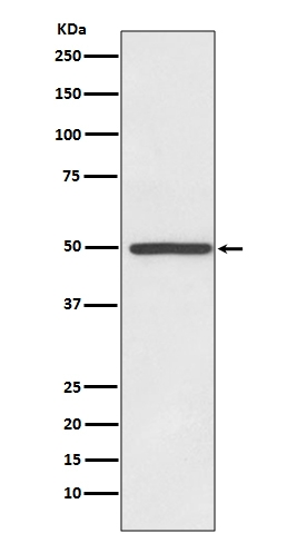Western blot analysis of Dopamine Transporter expression in HeLa cell lysate (M00369). <br>Electrophoresis was performed on a 5-20% SDS-PAGE gel at 70V (Stacking gel) / 90V (Resolving gel) for 2-3 hours. The sample well of each lane was loaded with 50ug of sample under reducing conditions. <br> After Electrophoresis, proteins were transferred to a Nitrocellulose membrane at 150mA for 50-90 minutes. Blocked the membrane with 5% Non-fat Milk/ TBS for 1.5 hour at RT. The membrane was incubated with rabbit anti-SLC6A3 monoclonal antibody (Catalog # M00369)  overnight at 4°C, then washed with TBS-0.1%Tween 3 times with 5 minutes each and probed with a goat anti-rabbit IgG-HRP secondary antibody at a dilution of 1:10000 for 1.5 hour at RT. The signal is developed using an Enhanced Chemiluminescent detection (ECL) kit (Catalog # EK1002) with Tanon 5200 system. A specific band was detected for SLC6A3