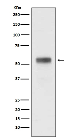 Western blot analysis of Retinoic Acid Receptor alpha expression in MCF-7 cell lysate (M00392). <br>Electrophoresis was performed on a 5-20% SDS-PAGE gel at 70V (Stacking gel) / 90V (Resolving gel) for 2-3 hours. The sample well of each lane was loaded with 50ug of sample under reducing conditions. <br> After Electrophoresis, proteins were transferred to a Nitrocellulose membrane at 150mA for 50-90 minutes. Blocked the membrane with 5% Non-fat Milk/ TBS for 1.5 hour at RT. The membrane was incubated with rabbit anti-RARA monoclonal antibody (Catalog # M00392)  overnight at 4℃, then washed with TBS-0.1%Tween 3 times with 5 minutes each and probed with a goat anti-rabbit IgG-HRP secondary antibody at a dilution of 1:10000 for 1.5 hour at RT. The signal is developed using an Enhanced Chemiluminescent detection (ECL) kit (Catalog # EK1002) with Tanon 5200 system. A specific band was detected for RARA