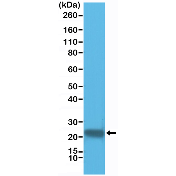Figure 1. Western Blotting result<br>Western Blot of HeLa cell lysate using anti-GSTP1 rabbit monoclonal antibody (Clone RM347) at a 1:1000 dilution.