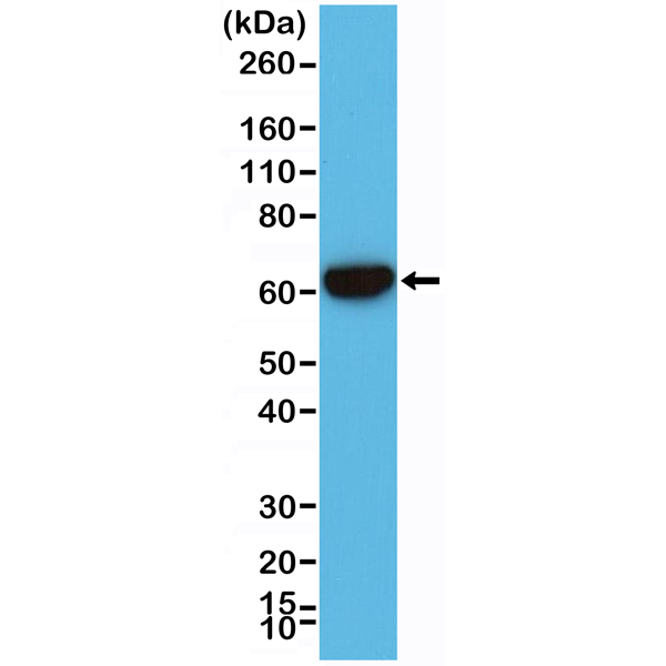 Figure 1. Western Blotting result<br>Western Blot of A431 cell lysates using RM341 using anti-CK-5/CK-6 rabbit monoclonal antibody (Clone RM341) at a 1:2000 dilution.