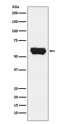 Figure 1. Western blot analysis of LCK using anti-LCK antibody in Jurkat cell lysate (M00425).<br>Electrophoresis was performed on a 5-20% SDS-PAGE gel at 70V (Stacking gel) / 90V (Resolving gel) for 2-3 hours. The sample well of each lane was loaded with 50ug of sample under reducing conditions. <br>After Electrophoresis, proteins were transferred to a Nitrocellulose membrane at 150mA for 50-90 minutes. Blocked the membrane with 5% Non-fat Milk/ TBS for 1.5 hour at RT. The membrane was incubated with rabbit anti-LCK antigen affinity purified polyclonal antibody (Catalog # M00425) at 0.5 ug/mL overnight at 4°C, then washed with TBS-0.1%Tween 3 times with 5 minutes each and probed with a goat anti-Rabbit IgG IgG-HRP secondary antibody at a dilution of 1:10000 for 1.5 hour at RT. The signal is developed using an Enhanced Chemiluminescent detection (ECL) kit (Catalog # SA1022) with Tanon 5200 system. A specific band was detected for LCK.