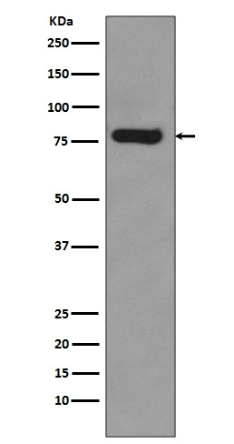 Western blot analysis of Androgen Receptor expression in 22Rv1 cell lysate (M00542-3). <br>Electrophoresis was performed on a 5-20% SDS-PAGE gel at 70V (Stacking gel) / 90V (Resolving gel) for 2-3 hours. The sample well of each lane was loaded with 50ug of sample under reducing conditions. <br> After Electrophoresis, proteins were transferred to a Nitrocellulose membrane at 150mA for 50-90 minutes. Blocked the membrane with 5% Non-fat Milk/ TBS for 1.5 hour at RT. The membrane was incubated with rabbit anti-AR monoclonal antibody (Catalog # M00542-3)  overnight at 4°C, then washed with TBS-0.1%Tween 3 times with 5 minutes each and probed with a goat anti-rabbit IgG-HRP secondary antibody at a dilution of 1:10000 for 1.5 hour at RT. The signal is developed using an Enhanced Chemiluminescent detection (ECL) kit (Catalog # EK1002) with Tanon 5200 system. A specific band was detected for AR