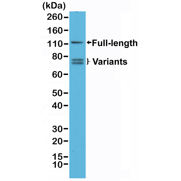 Figure 1. Western Blotting result<br>Western Blot analysis of 22RV1 whole cell lysates, using anti-Androgen Receptor (N-term) rabbit monoclonal antibody (Clone RM254), showed full length androgen receptor and splice variants expressed in 22RV1 cells.