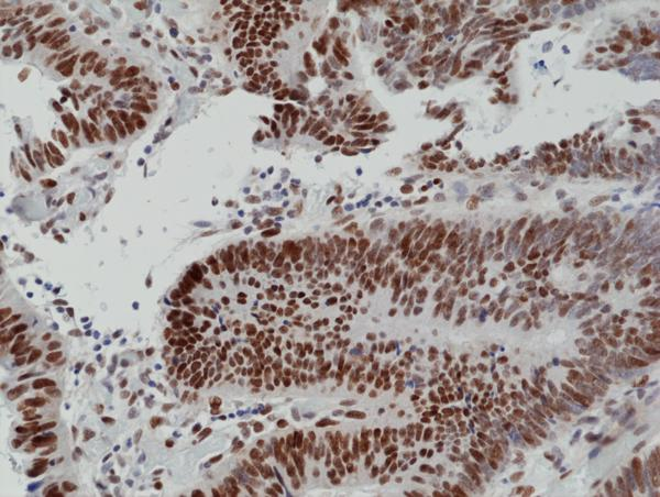 Figure 2. IHC result<br>Immunohistochemical staining of formalin fixed and paraffin embedded human colon cancer tissue section using anti-MSH6 rabbit monoclonal antibody (Clone RM376) at a 1:100 dilution.