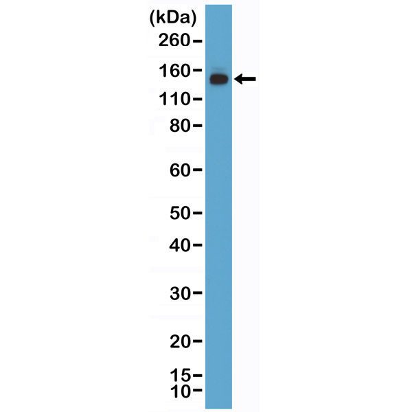 Figure 1. Western Blotting result<br>Western Blot of 293 lysate using anti-MSH6 rabbit monoclonal antibody (Clone RM376) at a 1:1000 dilution.