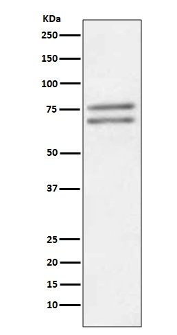 Western blot analysis of ADAM10 expression in Jurkat cell lysate (M00566). <br>Electrophoresis was performed on a 5-20% SDS-PAGE gel at 70V (Stacking gel) / 90V (Resolving gel) for 2-3 hours. The sample well of each lane was loaded with 50ug of sample under reducing conditions. <br> After Electrophoresis, proteins were transferred to a Nitrocellulose membrane at 150mA for 50-90 minutes. Blocked the membrane with 5% Non-fat Milk/ TBS for 1.5 hour at RT. The membrane was incubated with rabbit anti-ADAM10 monoclonal antibody (Catalog # M00566)  overnight at 4℃, then washed with TBS-0.1%Tween 3 times with 5 minutes each and probed with a goat anti-rabbit IgG-HRP secondary antibody at a dilution of 1:10000 for 1.5 hour at RT. The signal is developed using an Enhanced Chemiluminescent detection (ECL) kit (Catalog # EK1002) with Tanon 5200 system. A specific band was detected for ADAM10