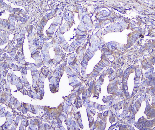 Figure 4. IHC analysis of GSTM1 using anti-GSTM1 antibody (M00569). <br>GSTM1 was detected in paraffin-embedded section of human colon cancer tissue. Heat mediated antigen retrieval was performed in citrate buffer (pH6, epitope retrieval solution) for 20 mins. The tissue section was blocked with 10% goat serum. The tissue section was then incubated with 2μg/ml mouse anti-GSTM1 Antibody (M00569) overnight at 4°C. Biotinylated goat anti-mouse IgG was used as secondary antibody and incubated for 30 minutes at 37°C. The tissue section was developed using Strepavidin-Biotin-Complex (SABC)(Catalog # SA1021) with DAB as the chromogen.