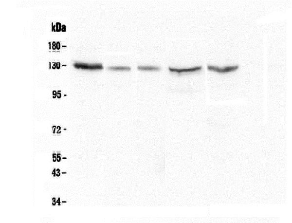 Figure 2. Western blot analysis of CASR using anti-CASR antibody (M00574).  <br>Electrophoresis was performed on a 8% SDS-PAGE gel at 70V (Stacking gel) / 90V (Resolving gel) for 2-3 hours. The sample well of each lane was loaded with 50ug of sample under reducing conditions.  <br>Lane 1: human Hela whole cell lysate,<br>Lane 2: human A549 whole cell lysate,<br>Lane 3: human 22RV1 whole cell lysate,<br>Lane 4: human HepG2 whole cell lysate,<br>Lane 5: human Caco-2 whole cell lysate.  <br>After Electrophoresis, proteins were transferred to a Nitrocellulose membrane at 150mA for 50-90 minutes. Blocked the membrane with 5% Non-fat Milk/ TBS for 1.5 hour at RT. The membrane was incubated with mouse anti-CASR antigen affinity purified monoclonal antibody (Catalog # M00574) at 0.5 μg/mL overnight at 4°C, then washed with TBS-0.1%Tween 3 times with 5 minutes each and probed with a goat anti-mouse IgG-HRP secondary antibody at a dilution of 1:10000 for 1.5 hour at RT. The signal is developed using an Enhanced Chemiluminescent detection (ECL) kit (Catalog # EK1001) with Tanon 5200 system.