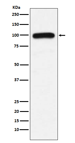Figure 1. Western blot analysis of UBE3A using anti-UBE3A antibody (M00582).<br>Electrophoresis was performed on a 5-20% SDS-PAGE gel at 70V (Stacking gel) / 90V (Resolving gel) for 2-3 hours. The sample well of each lane was loaded with 50ug of sample under reducing conditions. <br>After Electrophoresis, proteins were transferred to a Nitrocellulose membrane at 150mA for 50-90 minutes. Blocked the membrane with 5% Non-fat Milk/ TBS for 1.5 hour at RT. The membrane was incubated with rabbit anti-UBE3A antigen affinity purified polyclonal antibody (Catalog # M00582) at 0.5 ug/mL overnight at 4°C, then washed with TBS-0.1%Tween 3 times with 5 minutes each and probed with a goat anti-Rabbit IgG IgG-HRP secondary antibody at a dilution of 1:10000 for 1.5 hour at RT. The signal is developed using an Enhanced Chemiluminescent detection (ECL) kit (Catalog # SA1022) with Tanon 5200 system. A specific band was detected for UBE3A.