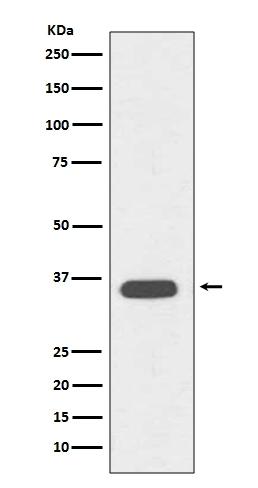 Anti-CD68 Rabbit Monoclonal Antibody