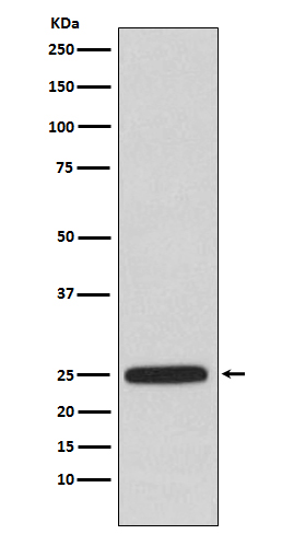 Figure 1. Western blot analysis of HPRT1 using anti-HPRT1 antibody (M00668) in A549 cell lysate.<br>Electrophoresis was performed on a 5-20% SDS-PAGE gel at 70V (Stacking gel) / 90V (Resolving gel) for 2-3 hours. The sample well of each lane was loaded with 50ug of sample under reducing conditions. <br>After Electrophoresis, proteins were transferred to a Nitrocellulose membrane at 150mA for 50-90 minutes. Blocked the membrane with 5% Non-fat Milk/ TBS for 1.5 hour at RT. The membrane was incubated with rabbit anti-HPRT1 antigen affinity purified polyclonal antibody (Catalog # M00668) at 0.5 ug/mL overnight at 4°C, then washed with TBS-0.1%Tween 3 times with 5 minutes each and probed with a goat anti-Rabbit IgG IgG-HRP secondary antibody at a dilution of 1:10000 for 1.5 hour at RT. The signal is developed using an Enhanced Chemiluminescent detection (ECL) kit (Catalog # SA1022) with Tanon 5200 system. A specific band was detected for HPRT1.