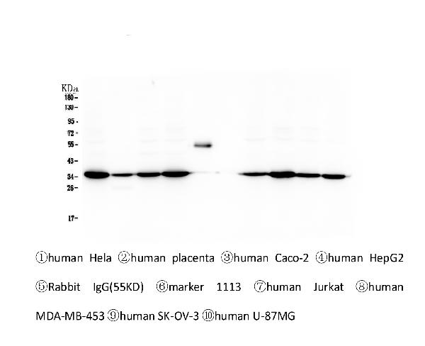 Figure 1. Western blot analysis of Emerin using anti-Emerin antibody (M00714).   <br>Electrophoresis was performed on a 5-20% SDS-PAGE gel at 70V (Stacking gel) / 90V (Resolving gel) for 2-3 hours. The sample well of each lane was loaded with 50ug of sample under reducing conditions.   <br>Lane 1: human Hela whole cell lysates, <br>Lane 2: human placenta tissue lysates, <br>Lane 3: human Caco-2 whole cell lysates, <br>Lane 4: human HepG2 whole cell lysates,<br>Lane 5: Rabbit IgG,<br> Lane 6: Marker 1113, <br>Lane 7: human Jurkat whole cell lysates.<br> Lane 8: human MDA-MB-453 whole cell lysates, <br>Lane 9: human SK-OV-3 whole cell lysates,<br> Lane 10: human SW620 whole cell lysates.   <br>After Electrophoresis, proteins were transferred to a Nitrocellulose membrane at 150mA for 50-90 minutes. Blocked the membrane with 5% Non-fat Milk/ TBS for 1.5 hour at RT. The membrane was incubated with mouse anti-Emerin antigen affinity purified monoclonal antibody (Catalog # M00714) at 0.5 μg/mL overnight at 4°C, then washed with TBS-0.1%Tween 3 times with 5 minutes each and probed with a Biotin Conjugated goat anti-mouse IgG secondary antibody at a dilution of 1:10000 for 1.5 hour at RT. The signal is developed using an Enhanced Chemiluminescent detection (ECL) kit (Catalog # EK1001) with Tanon 5200 system.