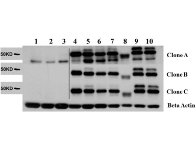 Figure 2. Western blot analysis of AKT2 using anti-AKT2 antibody (M00725).<br>Electrophoresis was performed on a 5-20% SDS-PAGE gel at 70V (Stacking gel) / 90V (Resolving gel) for 2-3 hours. The sample well of each lane was loaded with 50ug of sample under reducing conditions. <br>After Electrophoresis, proteins were transferred to a Nitrocellulose membrane at 150mA for 50-90 minutes. Blocked the membrane with 5% Non-fat Milk/ TBS for 1.5 hour at RT. The membrane was incubated with rabbit anti-AKT2 antigen affinity purified polyclonal antibody (Catalog # M00725) at 0.5 ug/mL overnight at 4°C, then washed with TBS-0.1%Tween 3 times with 5 minutes each and probed with a goat anti-Rat IgG-HRP secondary antibody at a dilution of 1:10000 for 1.5 hour at RT. The signal is developed using an Enhanced Chemiluminescent detection (ECL) kit (Catalog # SA1025) with Tanon 5200 system. A specific band was detected for AKT2.