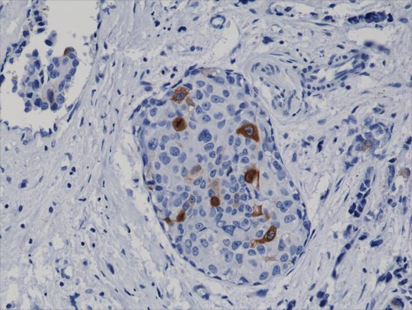 Figure 2. IHC result<br>Immunohistochemical staining of formalin fixed and paraffin embedded human breast cancer tissue sections using Anti-Cyclin B1 Rabbit Monoclonal Antibody (clone RM281) at a 1:2000 dilution.