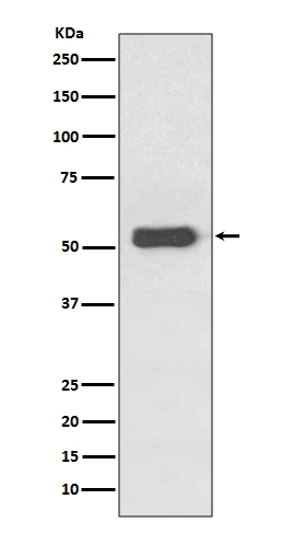Western blot analysis of Estrogen Receptor beta expression in MCF-7 Cell Lysate (M00786-1). <br>Electrophoresis was performed on a 5-20% SDS-PAGE gel at 70V (Stacking gel) / 90V (Resolving gel) for 2-3 hours. The sample well of each lane was loaded with 50ug of sample under reducing conditions. <br> After Electrophoresis, proteins were transferred to a Nitrocellulose membrane at 150mA for 50-90 minutes. Blocked the membrane with 5% Non-fat Milk/ TBS for 1.5 hour at RT. The membrane was incubated with rabbit anti-ESR2 monoclonal antibody (Catalog # M00786-1)  overnight at 4°C, then washed with TBS-0.1%Tween 3 times with 5 minutes each and probed with a goat anti-rabbit IgG-HRP secondary antibody at a dilution of 1:10000 for 1.5 hour at RT. The signal is developed using an Enhanced Chemiluminescent detection (ECL) kit (Catalog # EK1002) with Tanon 5200 system. A specific band was detected for ESR2