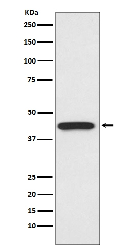 Western blot analysis of CDK9 expression in HeLa cell lysate (M00794). <br>Electrophoresis was performed on a 5-20% SDS-PAGE gel at 70V (Stacking gel) / 90V (Resolving gel) for 2-3 hours. The sample well of each lane was loaded with 50ug of sample under reducing conditions. <br> After Electrophoresis, proteins were transferred to a Nitrocellulose membrane at 150mA for 50-90 minutes. Blocked the membrane with 5% Non-fat Milk/ TBS for 1.5 hour at RT. The membrane was incubated with rabbit anti-CDK9 monoclonal antibody (Catalog # M00794)  overnight at 4℃, then washed with TBS-0.1%Tween 3 times with 5 minutes each and probed with a goat anti-rabbit IgG-HRP secondary antibody at a dilution of 1:10000 for 1.5 hour at RT. The signal is developed using an Enhanced Chemiluminescent detection (ECL) kit (Catalog # EK1002) with Tanon 5200 system. A specific band was detected for CDK9