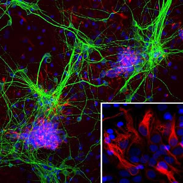 Immunofluorescent analysis of cortical neuron-glial cell culture from E20 rat stained with mouse mAb to nestin, M00806-1, dilution 1:500 in red, and costained with chicken pAb to MAP2,