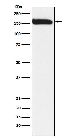 Figure 1. Western blot analysis of NCOA1 using anti-NCOA1 antibody (M00856).<br>Electrophoresis was performed on a 5-20% SDS-PAGE gel at 70V (Stacking gel) / 90V (Resolving gel) for 2-3 hours. The sample well of each lane was loaded with 50ug of sample under reducing conditions. <br>After Electrophoresis, proteins were transferred to a Nitrocellulose membrane at 150mA for 50-90 minutes. Blocked the membrane with 5% Non-fat Milk/ TBS for 1.5 hour at RT. The membrane was incubated with rabbit anti-NCOA1 antigen affinity purified polyclonal antibody (Catalog # M00856) at 0.5 ug/mL overnight at 4°C, then washed with TBS-0.1%Tween 3 times with 5 minutes each and probed with a goat anti-Rabbit IgG IgG-HRP secondary antibody at a dilution of 1:10000 for 1.5 hour at RT. The signal is developed using an Enhanced Chemiluminescent detection (ECL) kit (Catalog # SA1022) with Tanon 5200 system. A specific band was detected for NCOA1.
