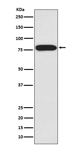 Figure 1. Western blot analysis of IRAK1 using anti-IRAK1 antibody (M01021).<br>Electrophoresis was performed on a 5-20% SDS-PAGE gel at 70V (Stacking gel) / 90V (Resolving gel) for 2-3 hours. The sample well of each lane was loaded with 50ug of sample under reducing conditions. <br>After Electrophoresis, proteins were transferred to a Nitrocellulose membrane at 150mA for 50-90 minutes. Blocked the membrane with 5% Non-fat Milk/ TBS for 1.5 hour at RT. The membrane was incubated with rabbit anti-IRAK1 antigen affinity purified polyclonal antibody (Catalog # M01021) at 0.5 ug/mL overnight at 4°C, then washed with TBS-0.1%Tween 3 times with 5 minutes each and probed with a goat anti-Rabbit IgG IgG-HRP secondary antibody at a dilution of 1:10000 for 1.5 hour at RT. The signal is developed using an Enhanced Chemiluminescent detection (ECL) kit (Catalog # SA1022) with Tanon 5200 system. A specific band was detected for IRAK1.