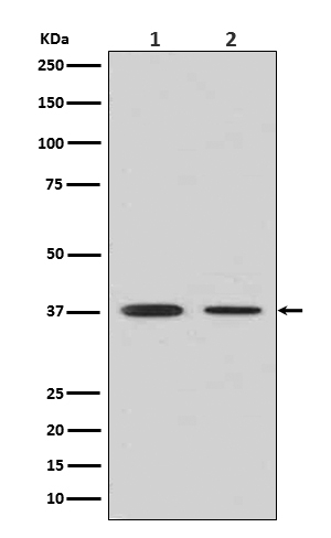 Western blot analysis of Liver Arginase in (1) Human fetal liver lysate; (2) Human fetal lung lysate (M01106-2). <br>Electrophoresis was performed on a 5-20% SDS-PAGE gel at 70V (Stacking gel) / 90V (Resolving gel) for 2-3 hours. The sample well of each lane was loaded with 50ug of sample under reducing conditions. <br> After Electrophoresis, proteins were transferred to a Nitrocellulose membrane at 150mA for 50-90 minutes. Blocked the membrane with 5% Non-fat Milk/ TBS for 1.5 hour at RT. The membrane was incubated with rabbit anti-ARG1 monoclonal antibody (Catalog # M01106-2)  overnight at 4?? then washed with TBS-0.1%Tween 3 times with 5 minutes each and probed with a goat anti-rabbit IgG-HRP secondary antibody at a dilution of 1:10000 for 1.5 hour at RT. The signal is developed using an Enhanced Chemiluminescent detection (ECL) kit (Catalog # EK1002) with Tanon 5200 system. A specific band was detected for ARG1