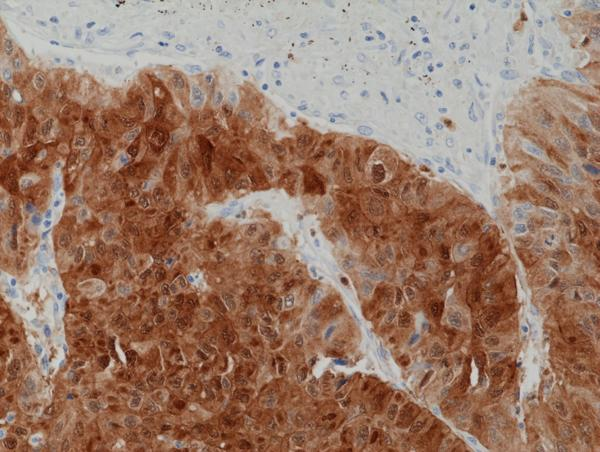 Figure 2. IHC result<br>Immunohistochemical staining of formalin fixed and paraffin embedded human liver cancer tissue section using anti-ARG1 rabbit monoclonal antibody (Clone RM377) at a 1:1250 dilution.