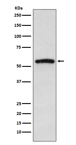 Figure 1. Western blot analysis of IRAK4 using anti-IRAK4 antibody (M01247).<br>Electrophoresis was performed on a 5-20% SDS-PAGE gel at 70V (Stacking gel) / 90V (Resolving gel) for 2-3 hours. The sample well of each lane was loaded with 50ug of sample under reducing conditions. <br>After Electrophoresis, proteins were transferred to a Nitrocellulose membrane at 150mA for 50-90 minutes. Blocked the membrane with 5% Non-fat Milk/ TBS for 1.5 hour at RT. The membrane was incubated with rabbit anti-IRAK4 antigen affinity purified polyclonal antibody (Catalog # M01247) at 0.5 ug/mL overnight at 4°C, then washed with TBS-0.1%Tween 3 times with 5 minutes each and probed with a goat anti-Rabbit IgG IgG-HRP secondary antibody at a dilution of 1:10000 for 1.5 hour at RT. The signal is developed using an Enhanced Chemiluminescent detection (ECL) kit (Catalog # SA1022) with Tanon 5200 system. A specific band was detected for IRAK4.