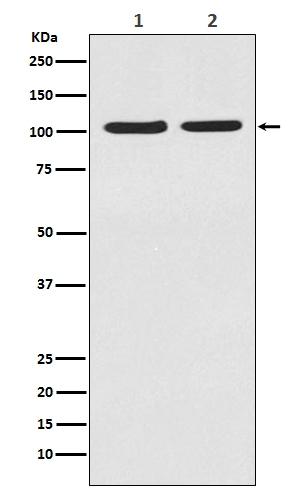 Anti-HIF-2 alpha Rabbit Monoclonal Antibody