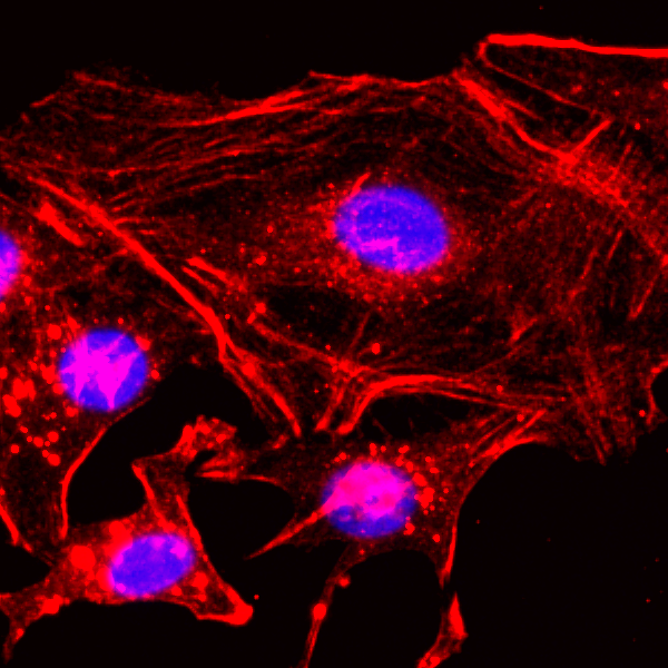 Figure 2. ICC result<br>Immunocytochemical staining of HeLa cells, using anti-?-Actin RevMAb Clone RM112 at 1/200 dilution (red). Nuclei have been labeled with DAPI (blue)