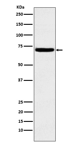Figure 1. Western blot analysis of HPSE using anti-HPSE antibody (M01313).<br>Electrophoresis was performed on a 5-20% SDS-PAGE gel at 70V (Stacking gel) / 90V (Resolving gel) for 2-3 hours. The sample well of each lane was loaded with 50ug of sample under reducing conditions. <br>After Electrophoresis, proteins were transferred to a Nitrocellulose membrane at 150mA for 50-90 minutes. Blocked the membrane with 5% Non-fat Milk/ TBS for 1.5 hour at RT. The membrane was incubated with rabbit anti-HPSE antigen affinity purified polyclonal antibody (Catalog # M01313) at 0.5 ug/mL overnight at 4°C, then washed with TBS-0.1%Tween 3 times with 5 minutes each and probed with a goat anti-Rabbit IgG IgG-HRP secondary antibody at a dilution of 1:10000 for 1.5 hour at RT. The signal is developed using an Enhanced Chemiluminescent detection (ECL) kit (Catalog # SA1022) with Tanon 5200 system. A specific band was detected for HPSE.