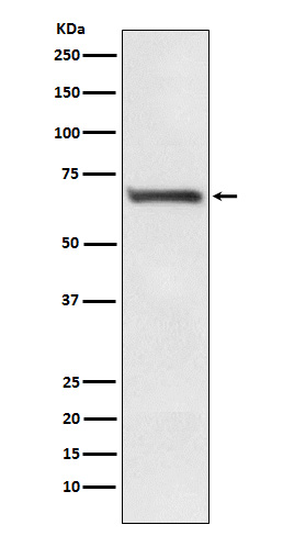 Figure 1. Western blot analysis of RPA1 using anti-RPA1 antibody (M01317-1).<br>Electrophoresis was performed on a 5-20% SDS-PAGE gel at 70V (Stacking gel) / 90V (Resolving gel) for 2-3 hours. The sample well of each lane was loaded with 50ug of sample under reducing conditions. <br>After Electrophoresis, proteins were transferred to a Nitrocellulose membrane at 150mA for 50-90 minutes. Blocked the membrane with 5% Non-fat Milk/ TBS for 1.5 hour at RT. The membrane was incubated with rabbit anti-RPA1 antigen affinity purified polyclonal antibody (Catalog # M01317-1) at 0.5 ug/mL overnight at 4?°C, then washed with TBS-0.1%Tween 3 times with 5 minutes each and probed with a goat anti-Rabbit IgG IgG-HRP secondary antibody at a dilution of 1:10000 for 1.5 hour at RT. The signal is developed using an Enhanced Chemiluminescent detection (ECL) kit (Catalog # SA1022) with Tanon 5200 system. A specific band was detected for RPA1.
