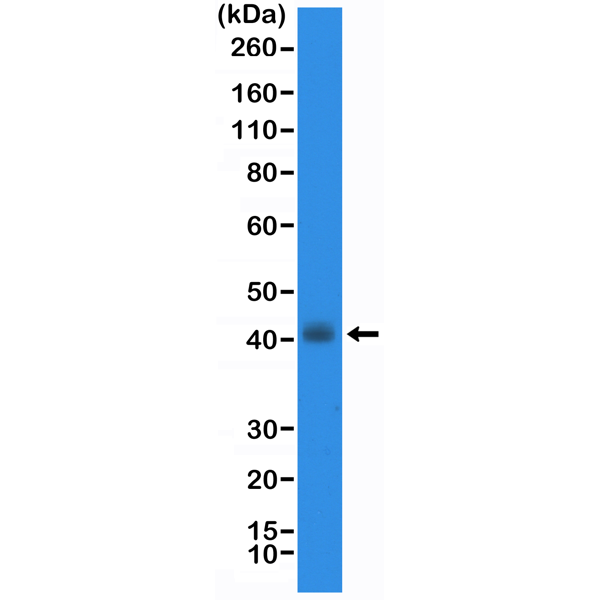 Figure 1. Western Blotting result<br>Western Blot of TT cell lysate using anti-TTF1 rabbit monoclonal antibody (Clone RM373) at a 1:20000 dilution.