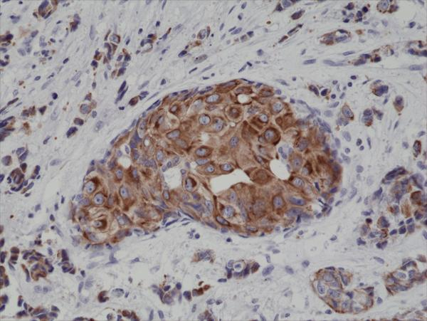 Figure 2. IHC result<br>Immunohistochemical staining of formalin fixed and paraffin embedded human breast cancer tissue sections using Anti-CK18 Rabbit Monoclonal Antibody (Clone RM279) at a 1:4000 dilution.