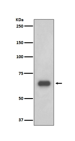 Western blot analysis of p70 S6 Kinase expression in 293T cell lysate (M01475). <br>Electrophoresis was performed on a 5-20% SDS-PAGE gel at 70V (Stacking gel) / 90V (Resolving gel) for 2-3 hours. The sample well of each lane was loaded with 50ug of sample under reducing conditions. <br> After Electrophoresis, proteins were transferred to a Nitrocellulose membrane at 150mA for 50-90 minutes. Blocked the membrane with 5% Non-fat Milk/ TBS for 1.5 hour at RT. The membrane was incubated with rabbit anti-RPS6KB1 monoclonal antibody (Catalog # M01475)  overnight at 4°C, then washed with TBS-0.1%Tween 3 times with 5 minutes each and probed with a goat anti-rabbit IgG-HRP secondary antibody at a dilution of 1:10000 for 1.5 hour at RT. The signal is developed using an Enhanced Chemiluminescent detection (ECL) kit (Catalog # EK1002) with Tanon 5200 system. A specific band was detected for RPS6KB1